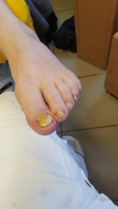 Crazy-feet